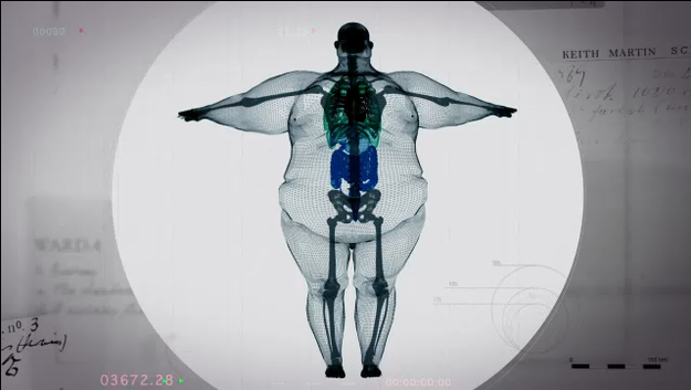 This Is What A 980-Pound Man Looks Like On The Inside