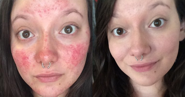 Nothing Helps Treat Her Bumpy Red Skin. Then She Tries One More Super Simple Treatment...