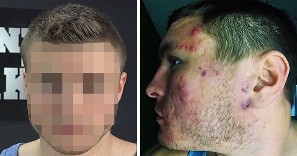 He Was Sick And Tired Of His Acne Problems, So He Made A Simple Change To His Diet And It Went Away