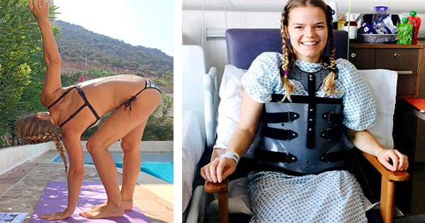Doctors Are Amazed When She Walks Just 11 Days After Getting Hit By A Car Thanks To Her Hyper-Flexible Spine.