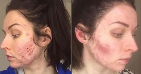 To Get Her Face To Clear Up From Acne, She Has To Give Up Something—And Her Boyfriend