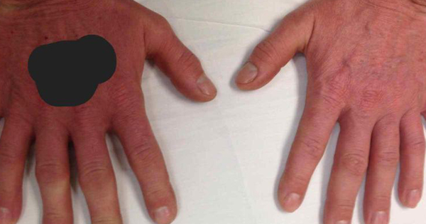 A Doctor Posts This Photo To See If People Can Spot A Very Rare Condition Of This Person.