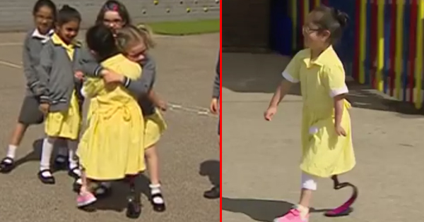 This Little Girl Is So Excited To Show Her Friends Hew New Prosthetic Legs