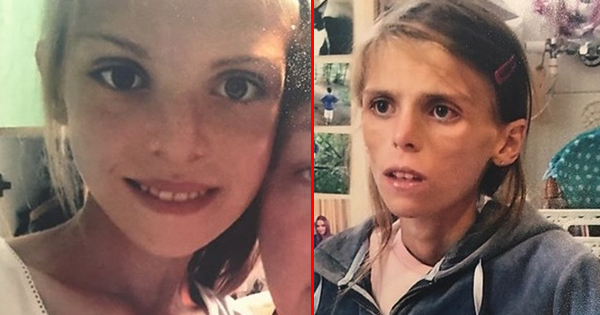 After Struggling To Fight Anorexia, This Teen Ends Her Life. But Others Think Doctors Could