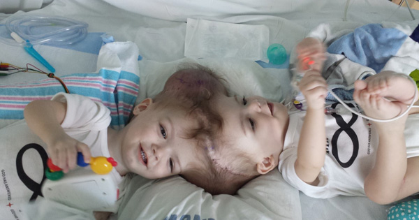 Parents Quit Their Jobs To Care For Their Conjoined Twins. 27 Hours Later, The Boys Are Wheeled Out Of Surgery