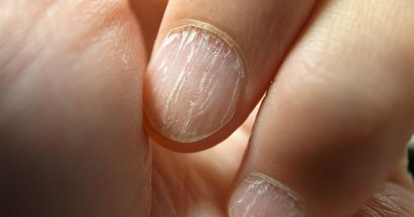 8 Things Your Nails Are Trying To Tell You About Your Health
