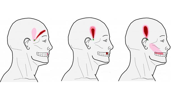 Forget Pain Pills: These Powerful Pressure Points Will Relieve Even Your WORST Headache!